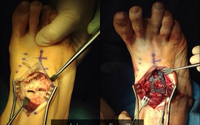Artrodesis Cuneo-Metatarsal y mas consulta